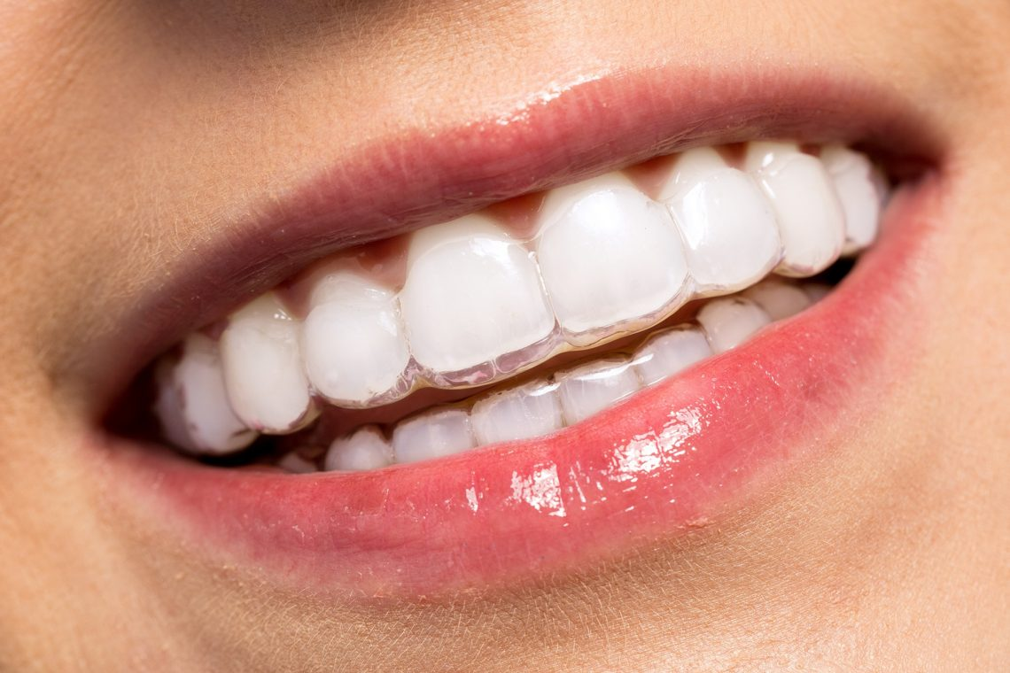 An Overview Of Invisible Braces